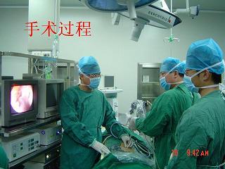 肾结石手术后_经皮肾镜碎石取石术